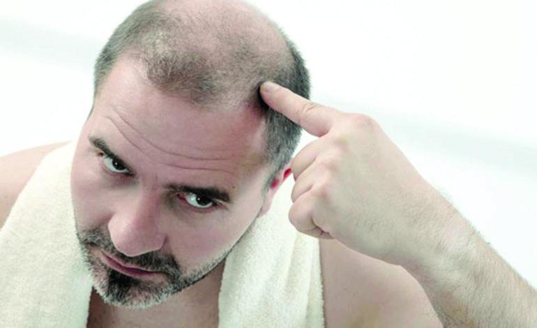 علماء يكتشفون طريقة لاستعادة الشعر