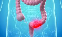 سرطان القولون يمكن تجنّبه بخمس طرق بسيطة
