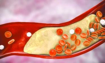 انخفاض الكولسترول أخطر من ارتفاعه