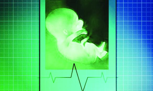 ترحيب إسلامي بمبادرة شعبية تدعو إلى تقييد الإجهاض في ميشيغن
